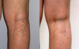 Before and after the use of Varicobooster 1