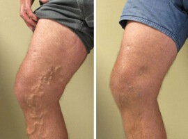 Before and after the use of Varicobooster 4